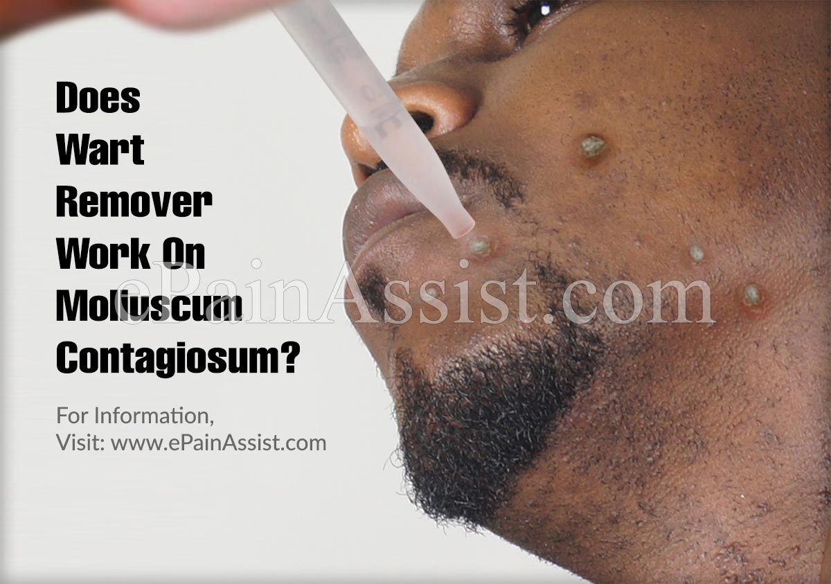 Does Wart Remover Work On Molluscum Contagiosum?