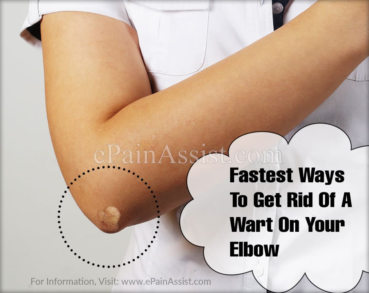 Fastest Ways To Get Rid Of A Wart On Your Elbow