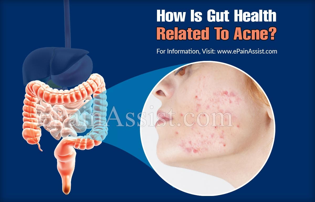 How Is Gut Health Related To Acne?