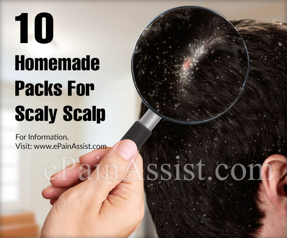 10 Homemade Packs For Scaly Scalp