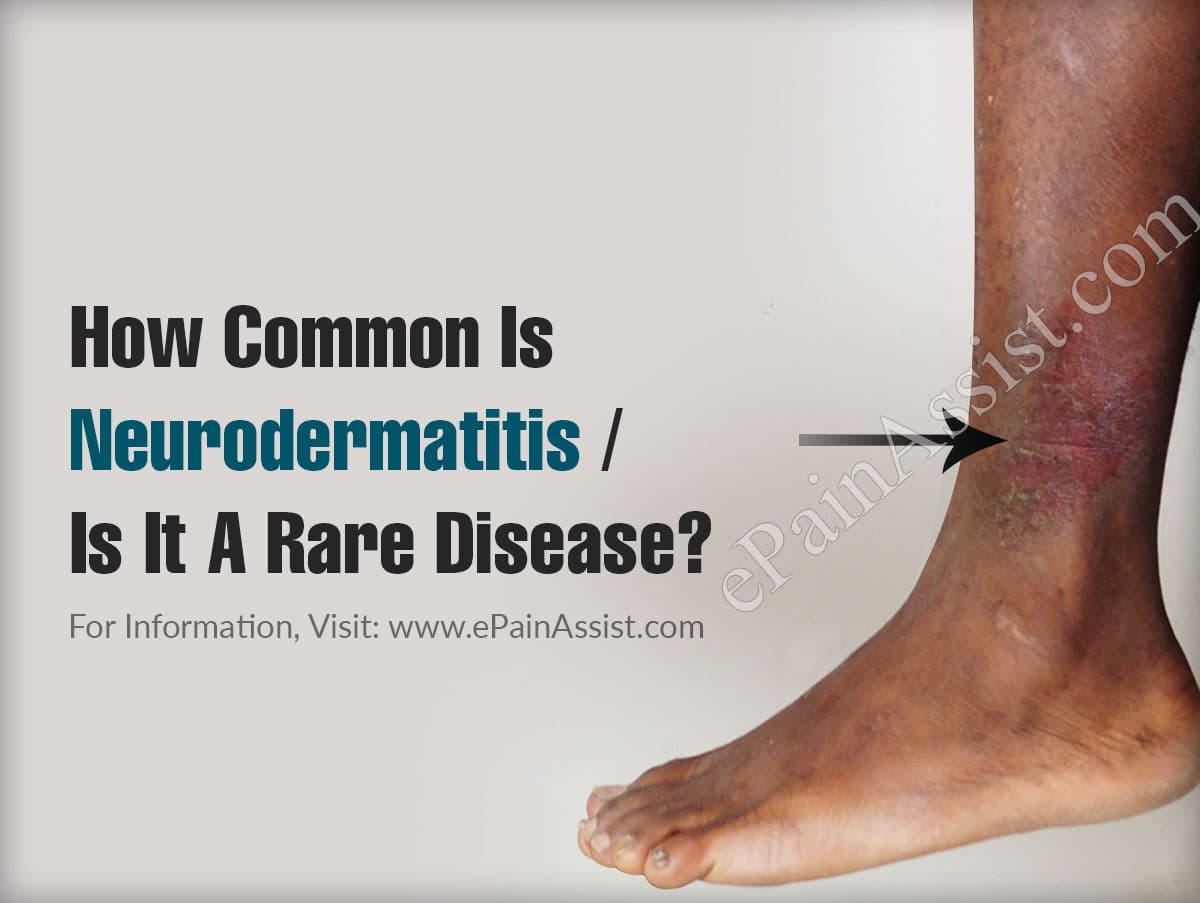 How Common Is Neurodermatitis Or Is It A Rare Disease?