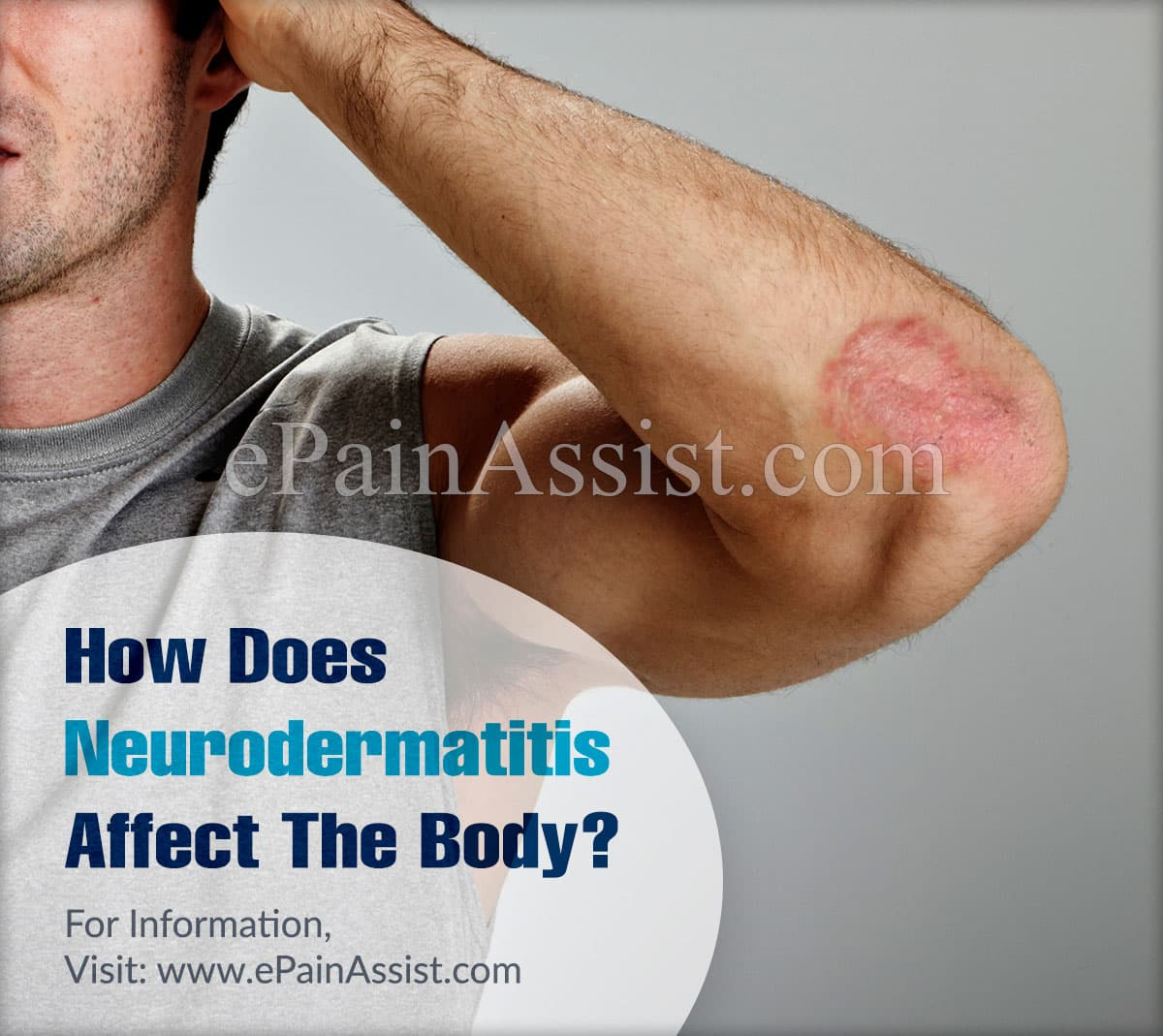 How Does Neurodermatitis Affect The Body?