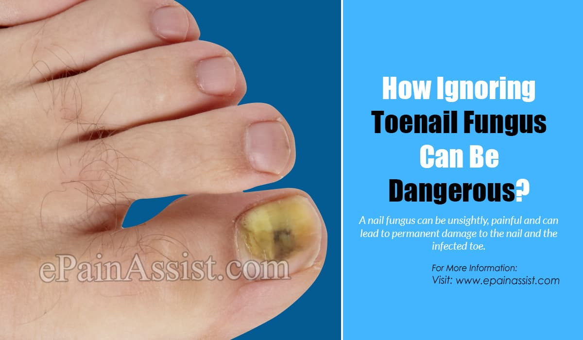How Ignoring Toenail Fungus Can Be Dangerous?