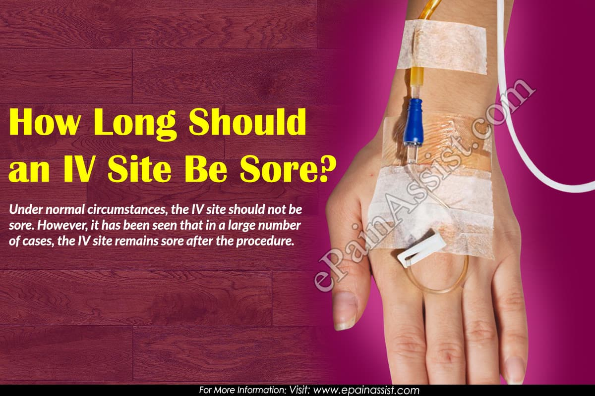 How Long Should an IV Site Be Sore?