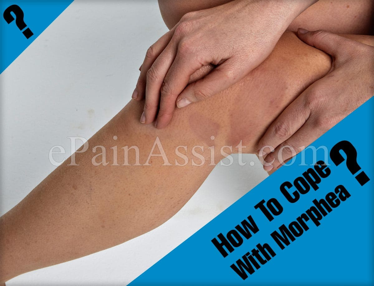 How To Cope With Morphea?