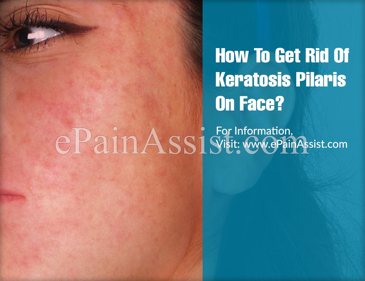 How To Get Rid Of Keratosis Pilaris: The Best Home Remedies