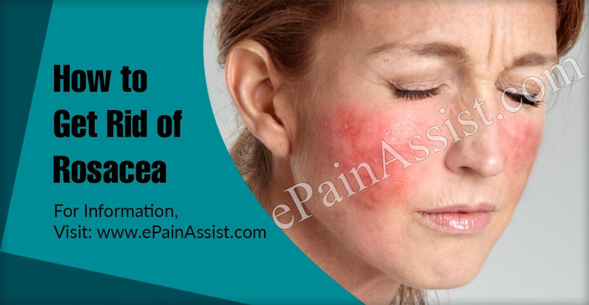 How to Get Rid of Rosacea?