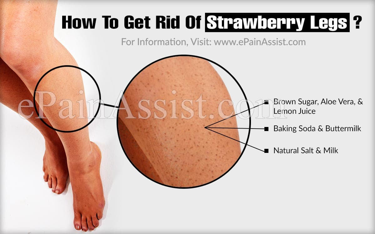 How To Get Rid Of Strawberry Legs?