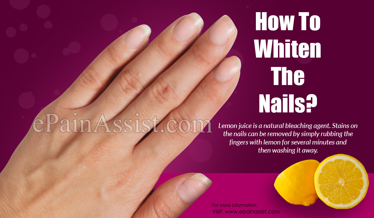 How To Whiten The Nails?
