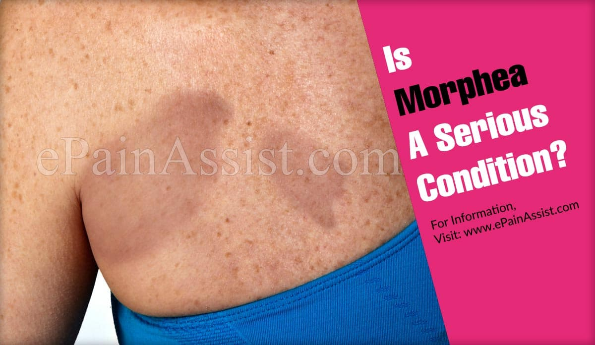 Is Morphea A Serious Condition?