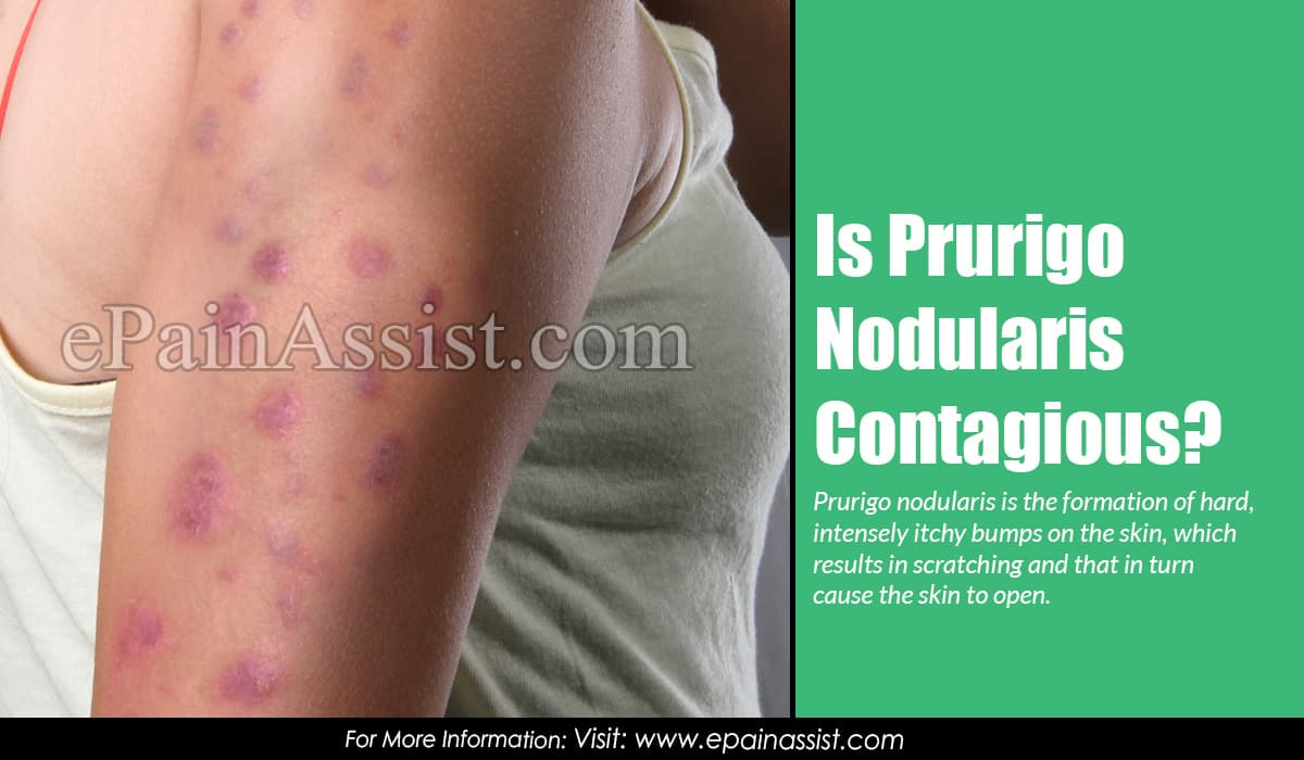 Is Prurigo Nodularis Contagious?