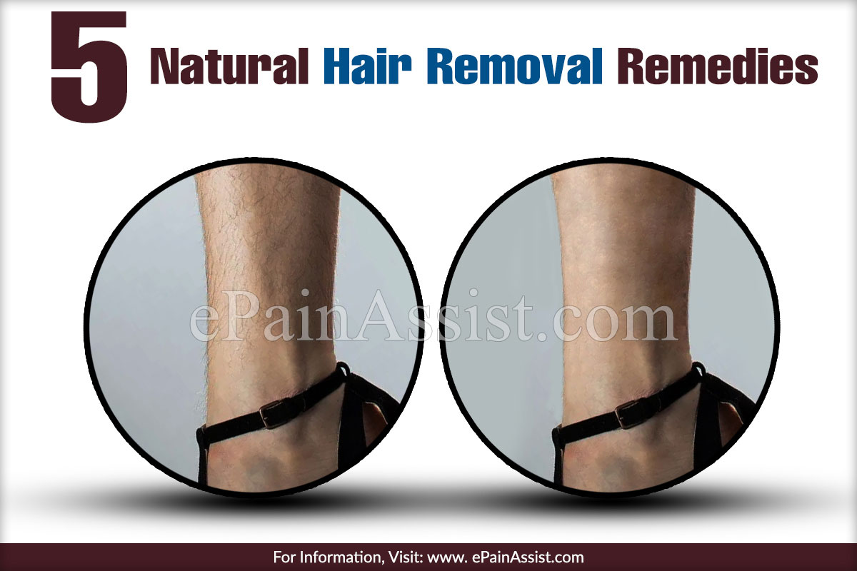 5 Natural Hair Removal Remedies