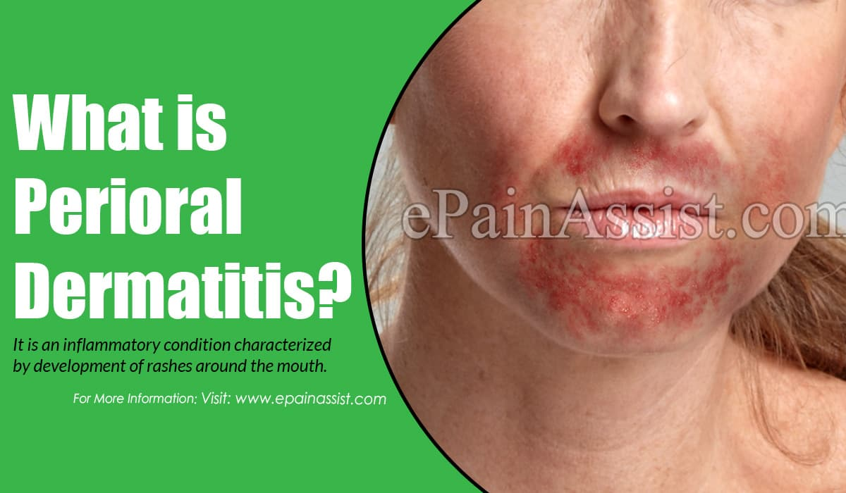 What is Perioral Dermatitis?