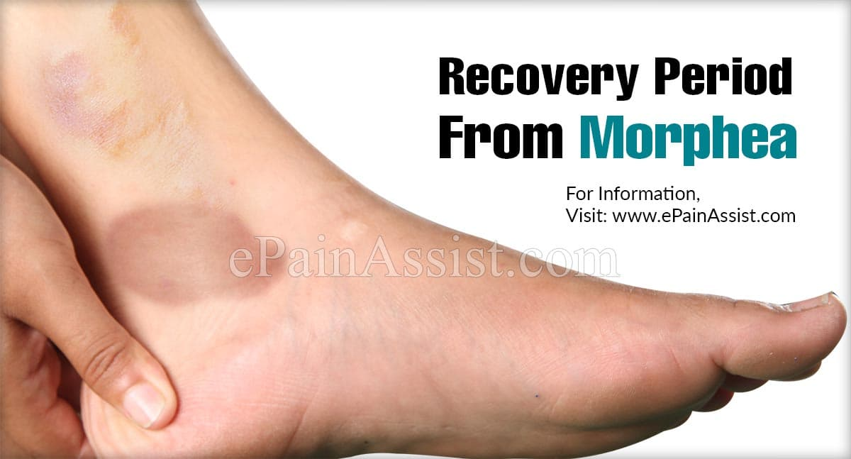 Recovery Period From Morphea