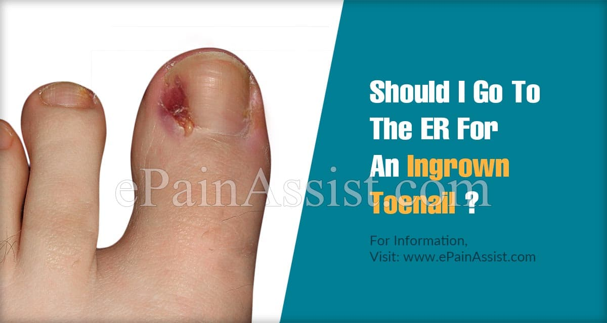 Should I Go To The ER For An Ingrown Toenail?