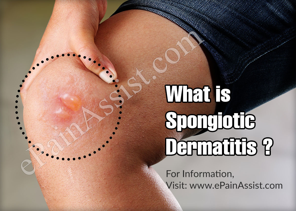 What is Spongiotic Dermatitis ?