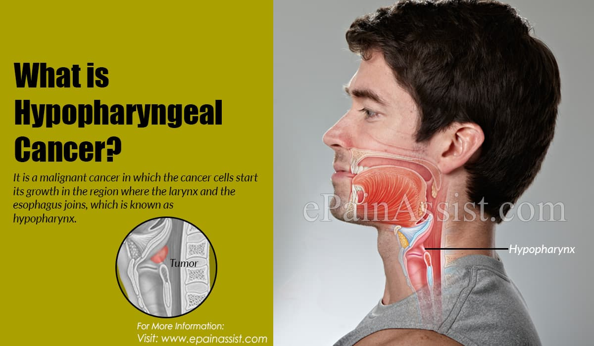 What is Hypopharyngeal Cancer?