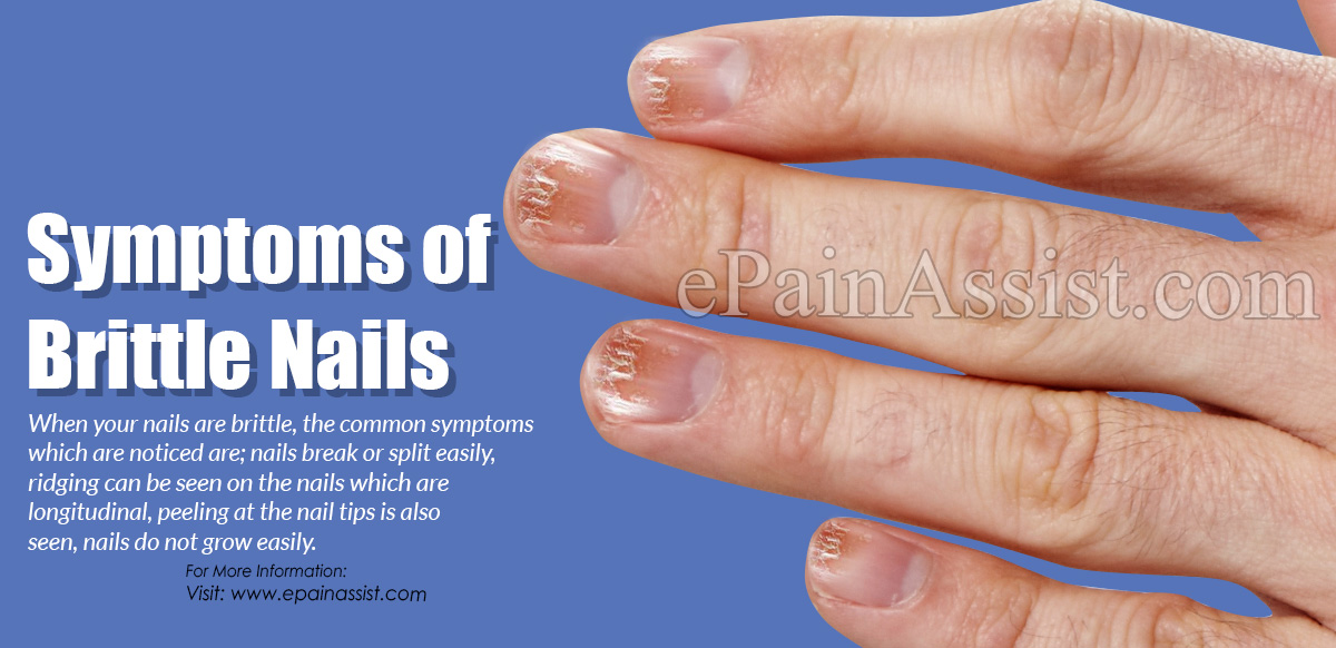 Symptoms of Brittle Nails & What Vitamins Are Lacking When You Have ...