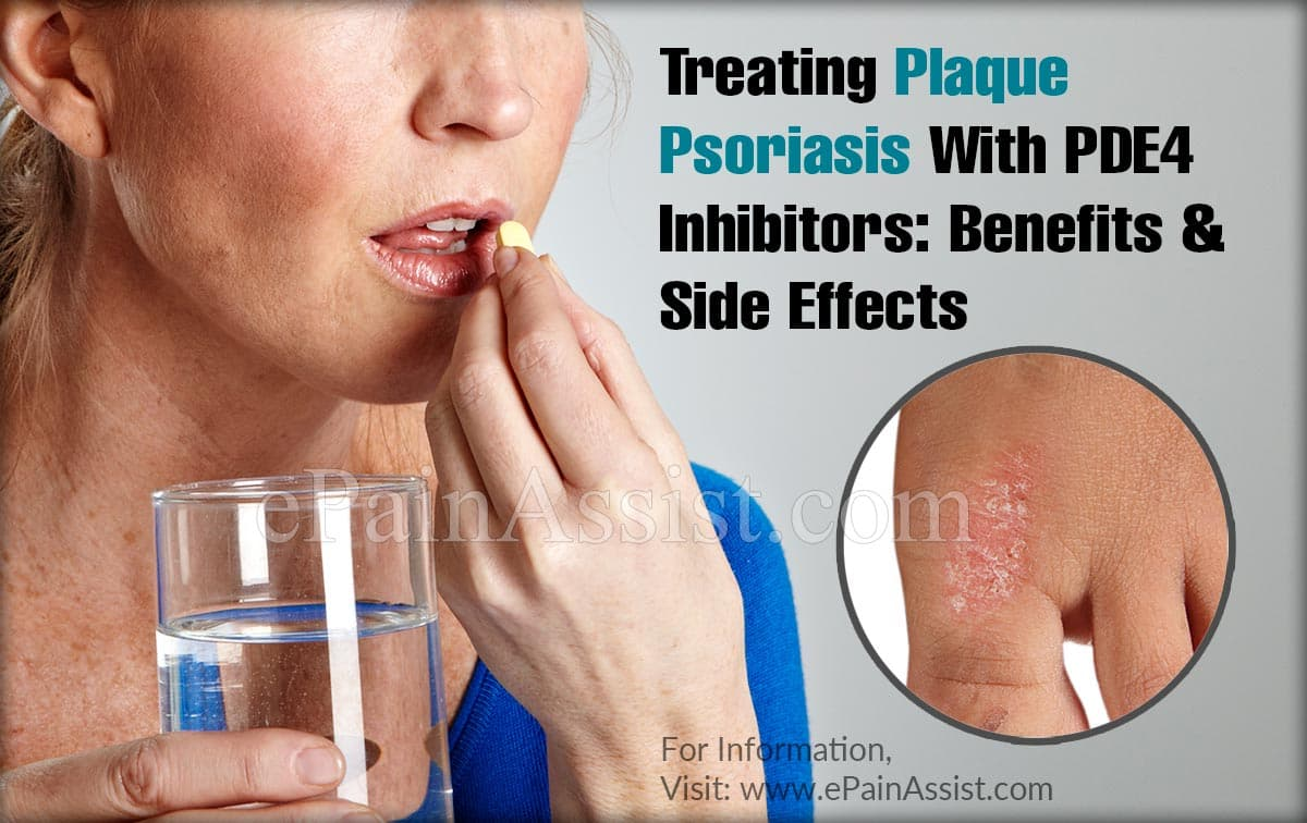 Treating Plaque Psoriasis With PDE4 Inhibitors: Benefits & Side Effects