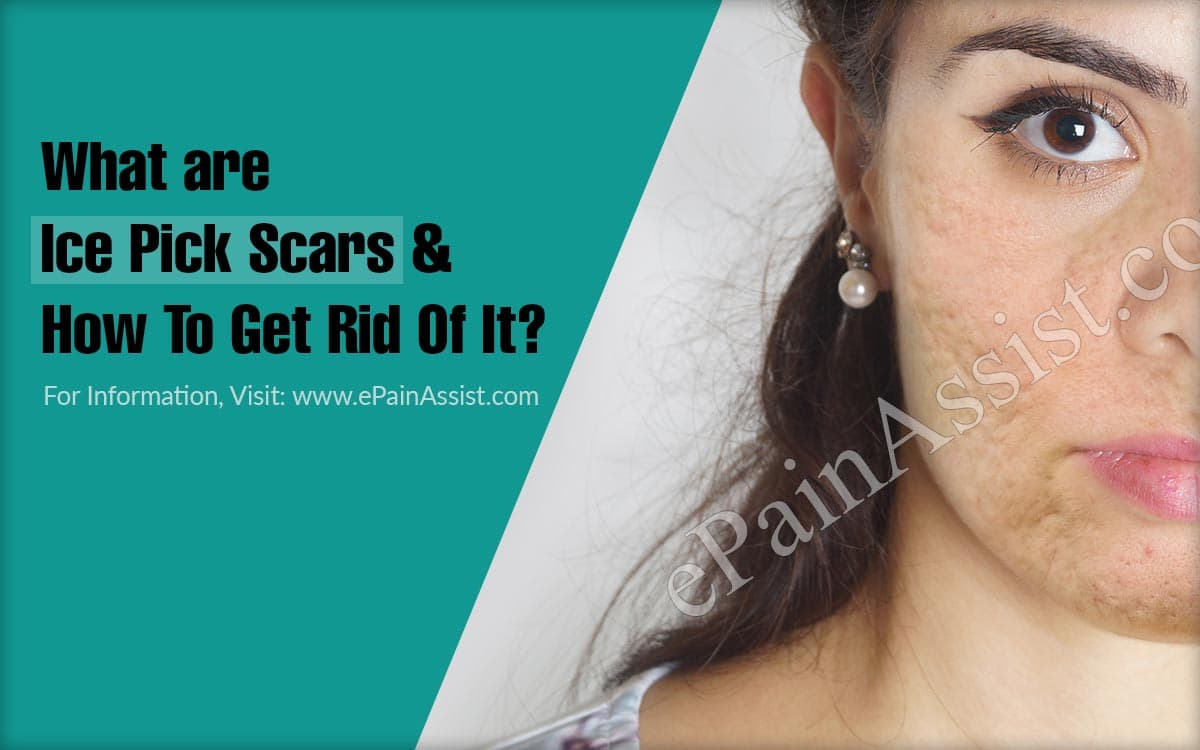 What are Ice Pick Scars & How To Get Rid Of It?