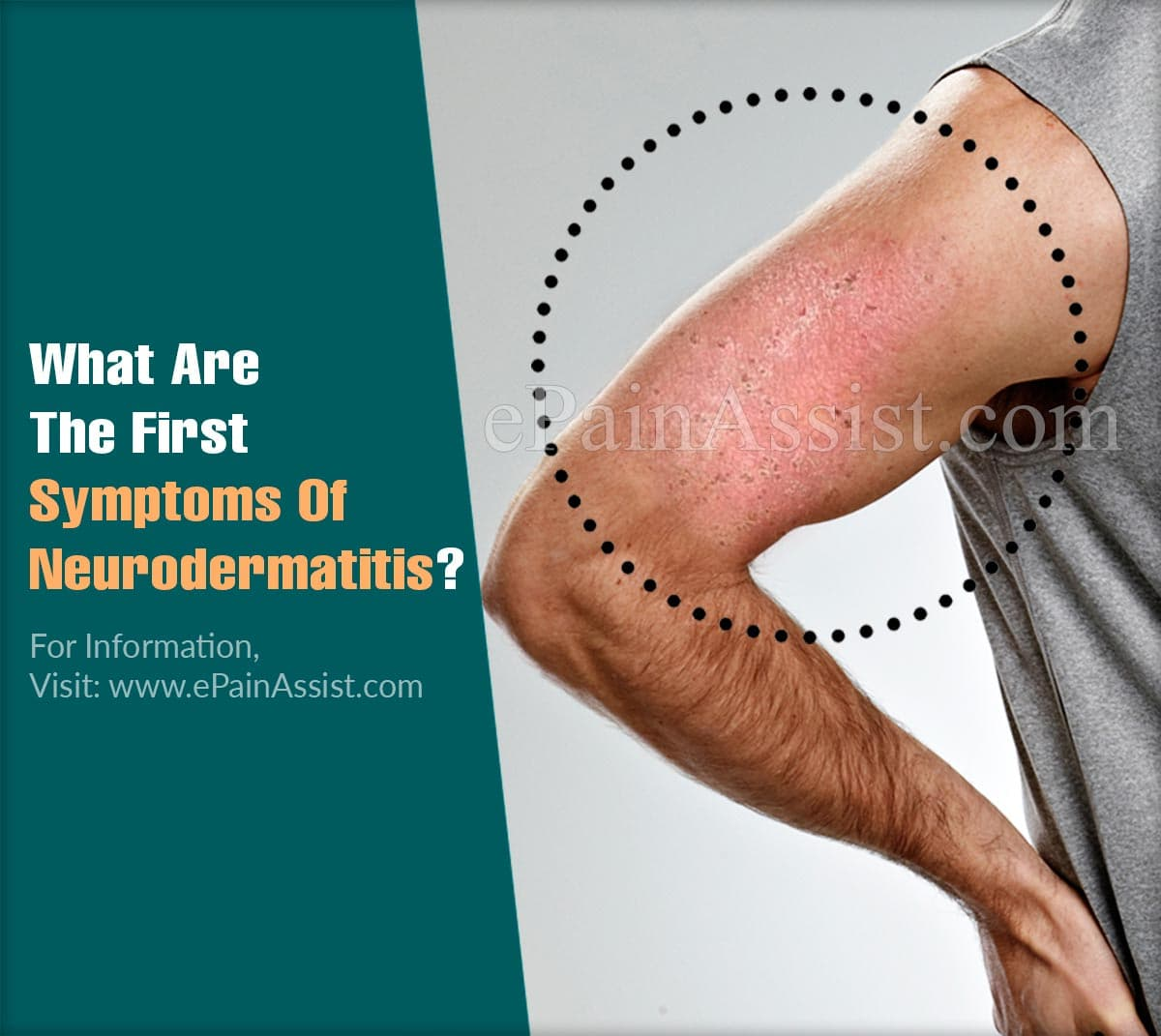 What Are The First Symptoms Of Neurodermatitis?