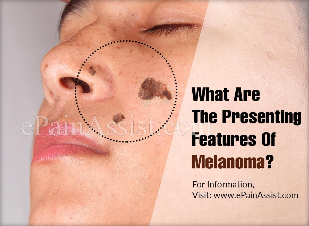 What are the Presenting Features of Melanoma?