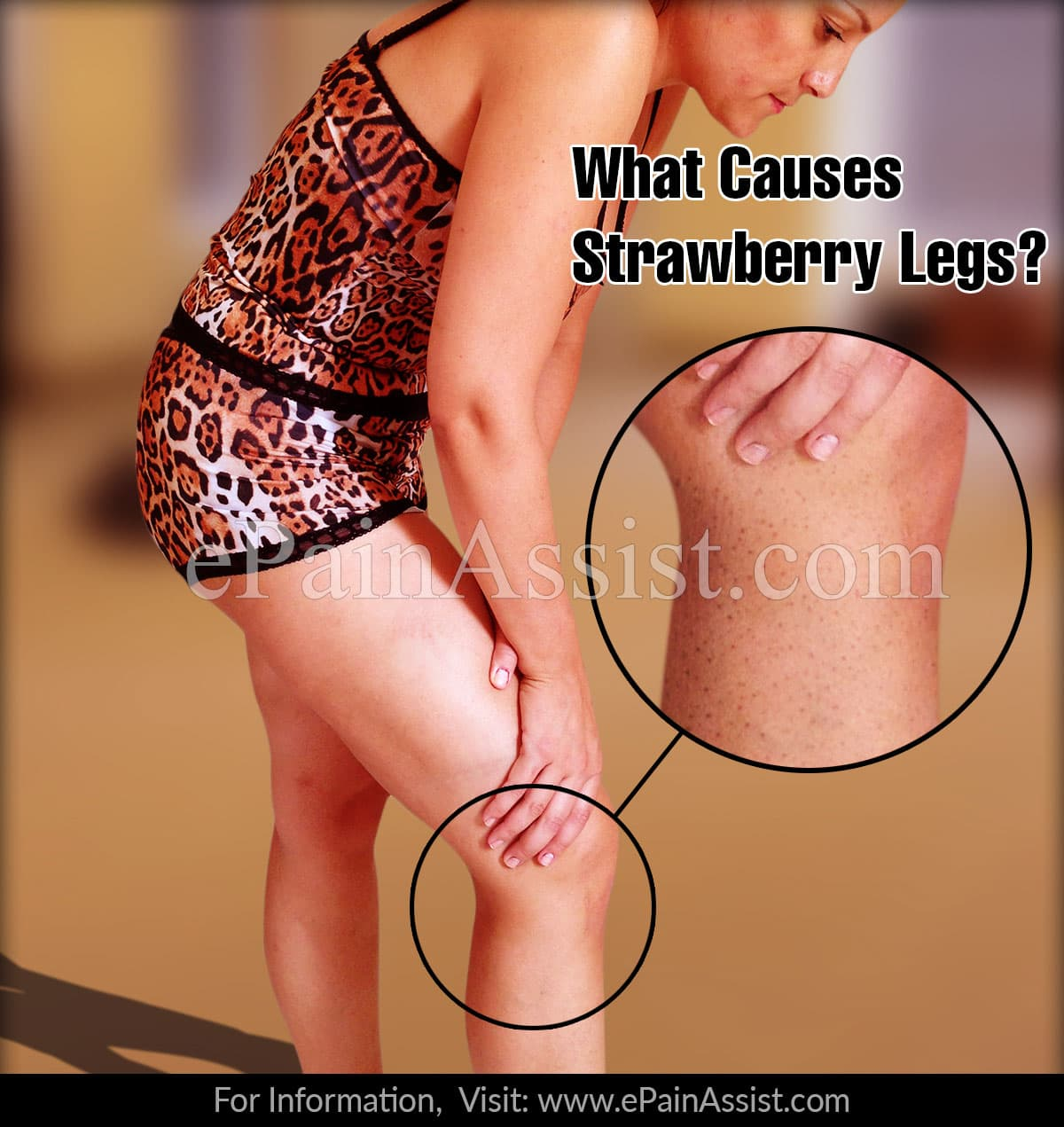 What Causes Strawberry Legs?