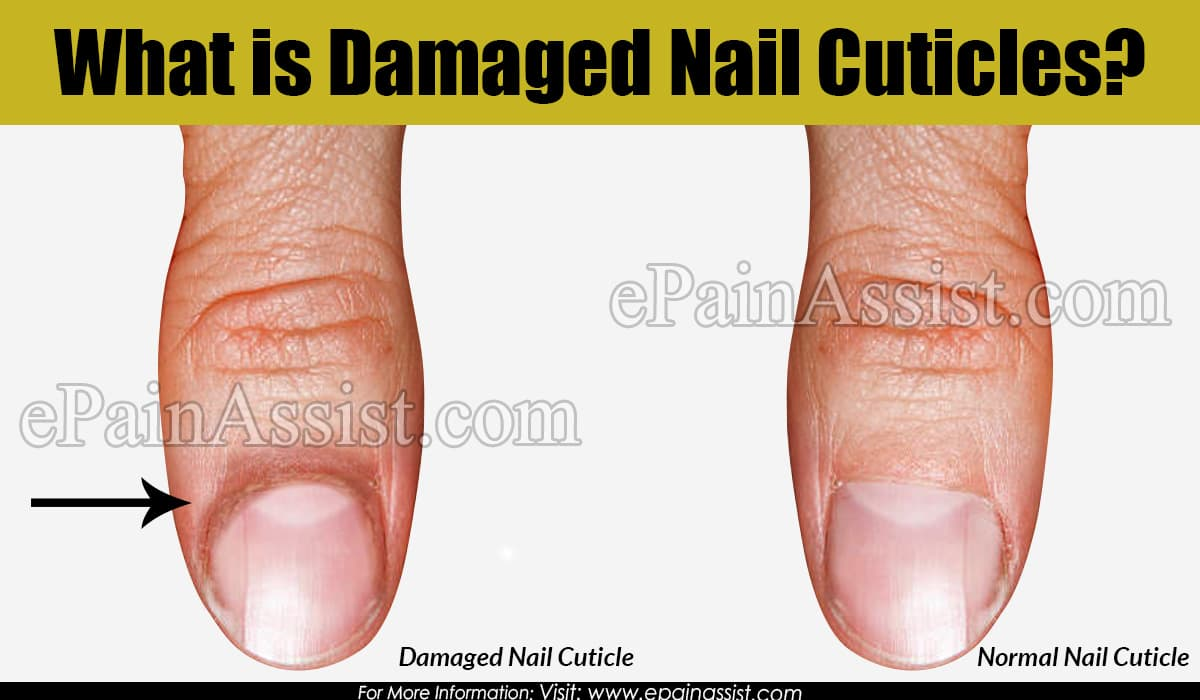 What is Damaged Nail Cuticles?