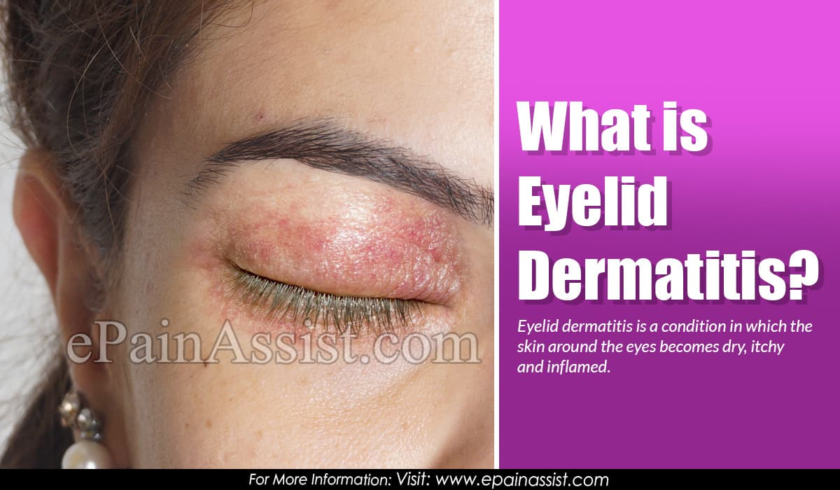 What is Eyelid Dermatitis?