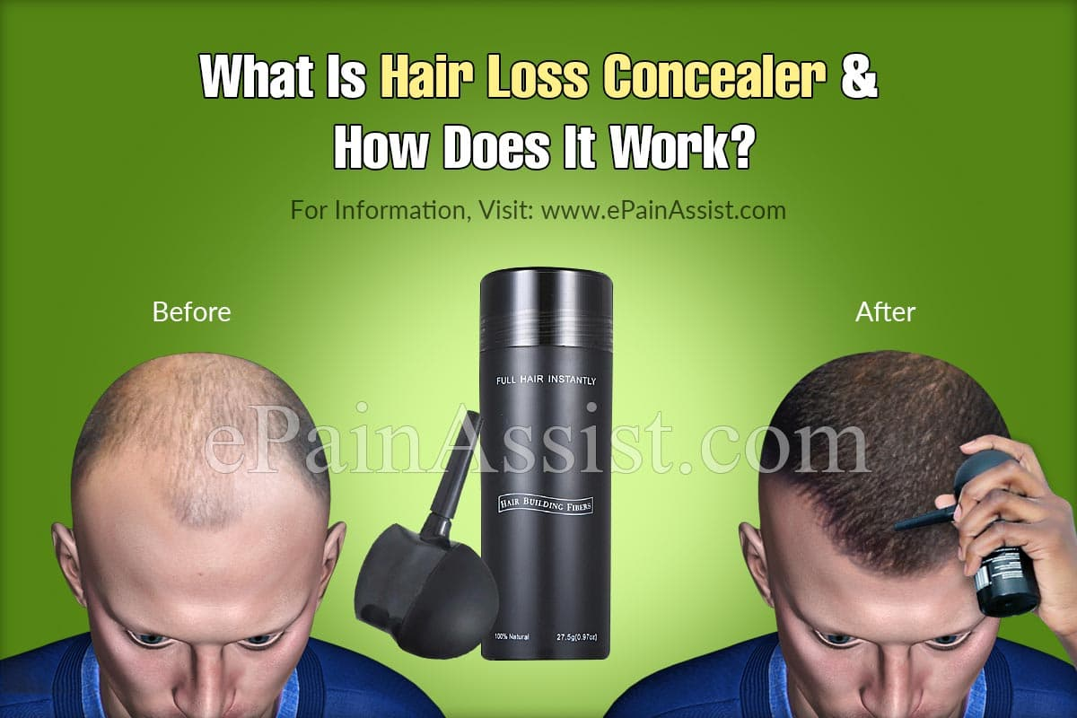 What Is Hair Loss Concealer and How Does It Work?
