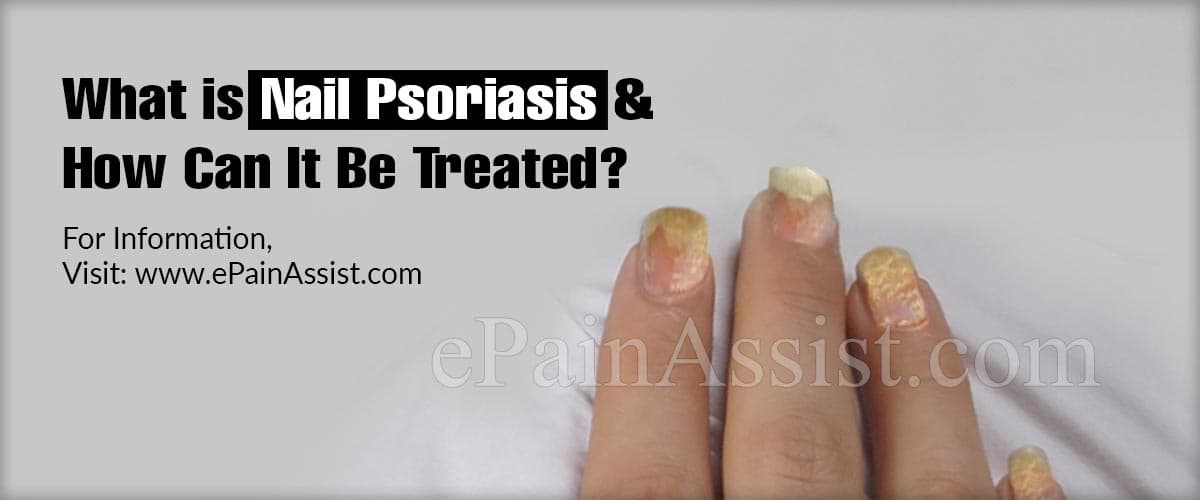 What is Nail Psoriasis & How Can It Be Treated?