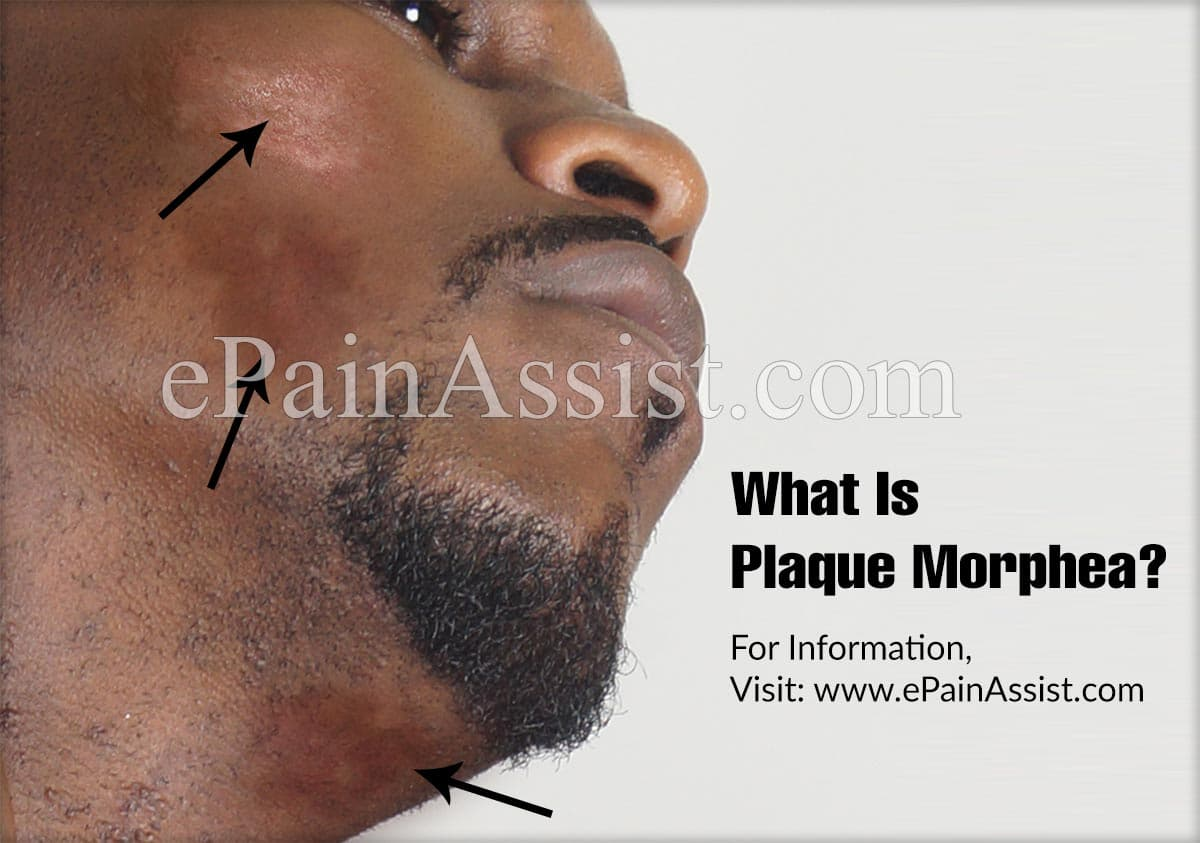 What Is Plaque Morphea?