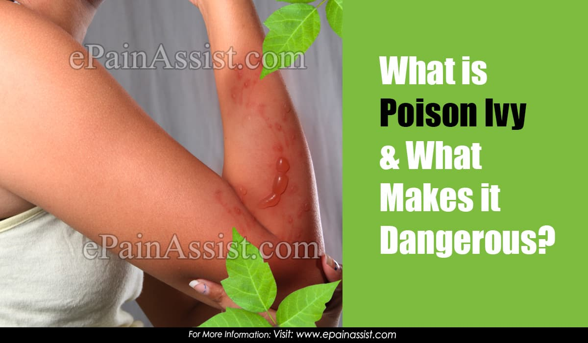 What is Poison Ivy and What Makes it Dangerous?