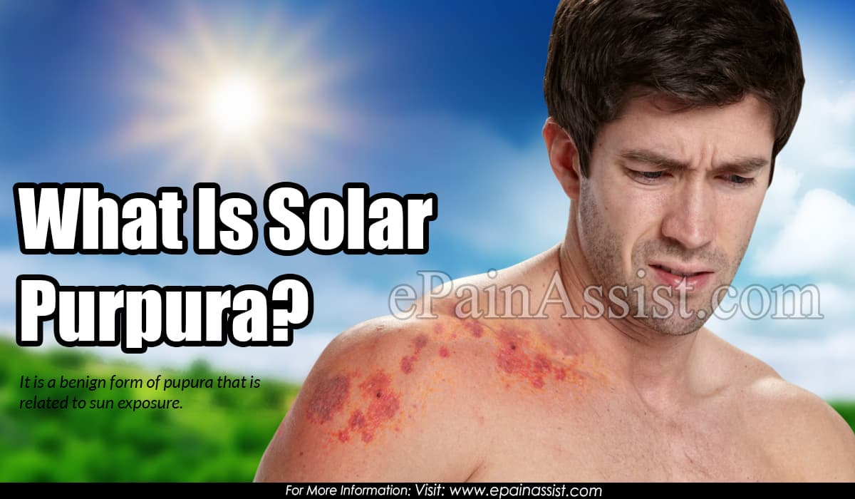 What Is Solar Purpura?