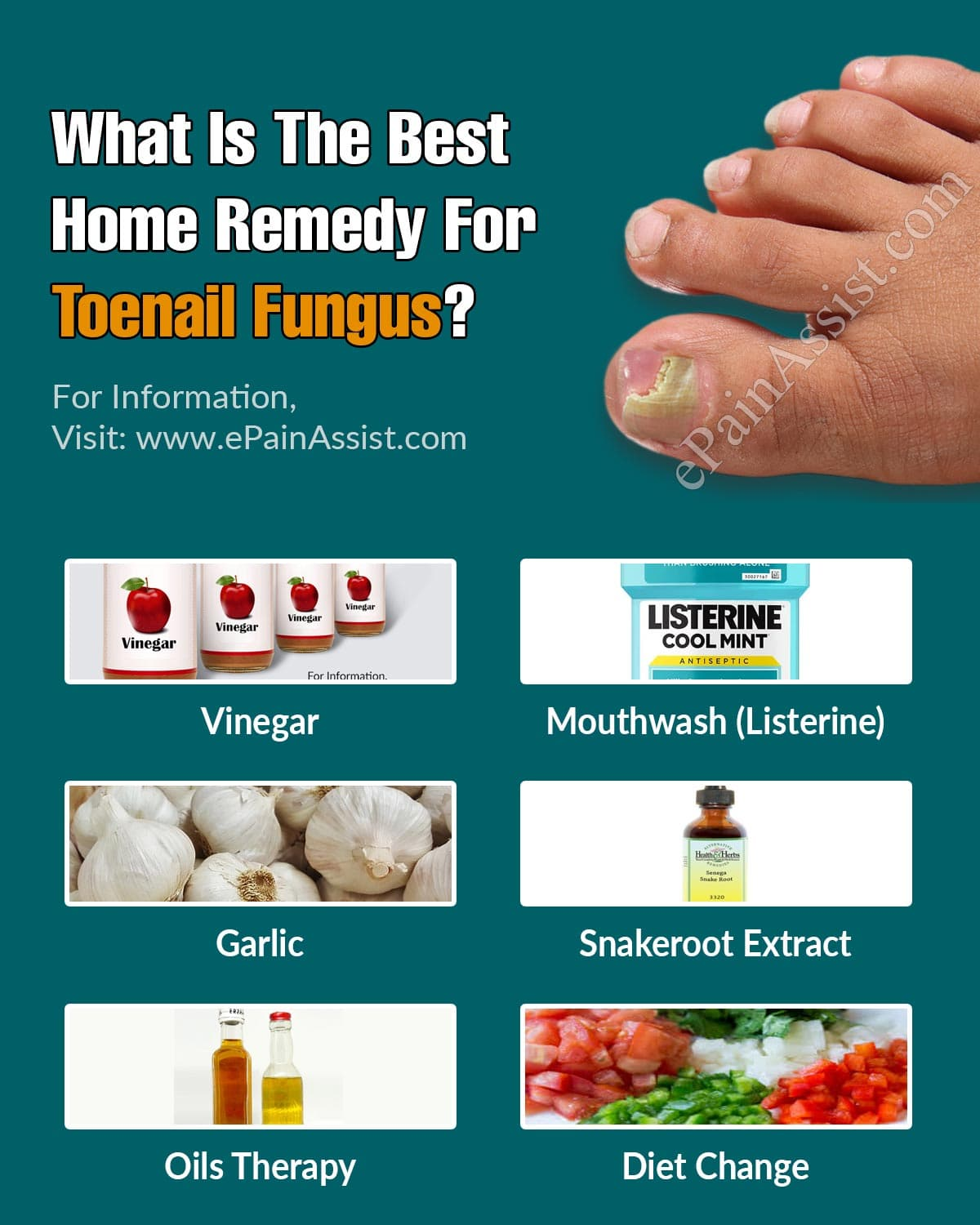 What Is The Best Home Remedy For Toenail Fungus?