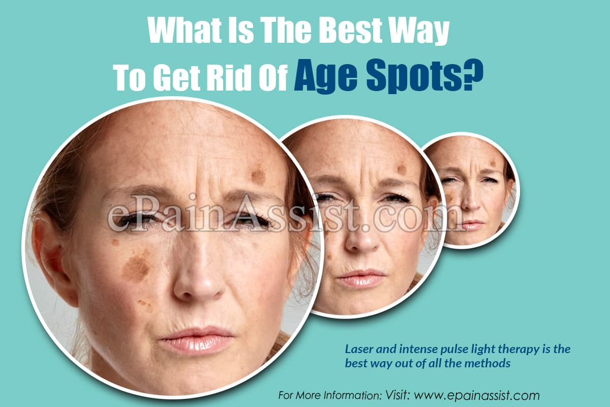 What is the Best Way to Get Rid of Age Spots?