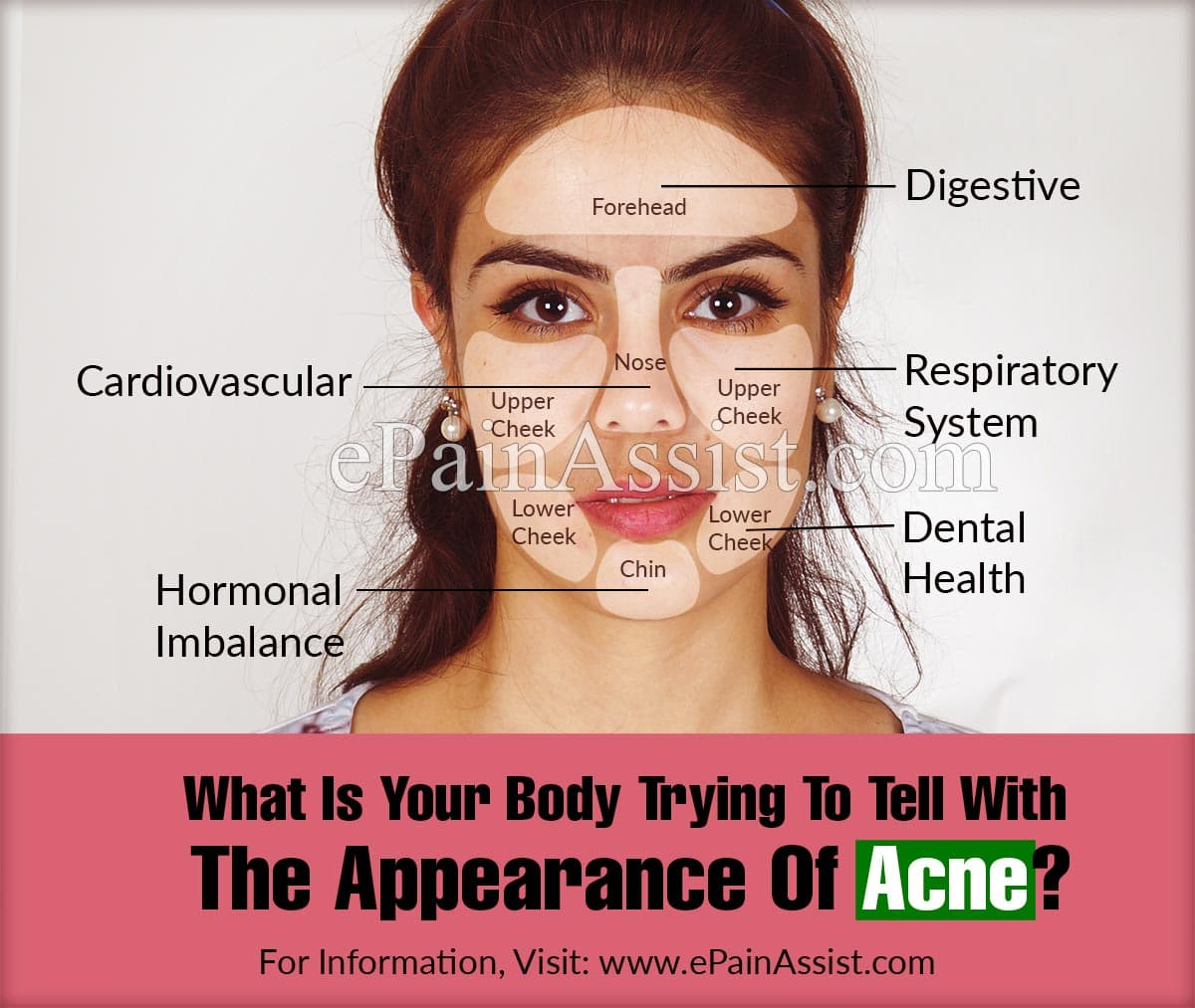 What Is Your Body Trying To Tell With The Appearance Of Acne?