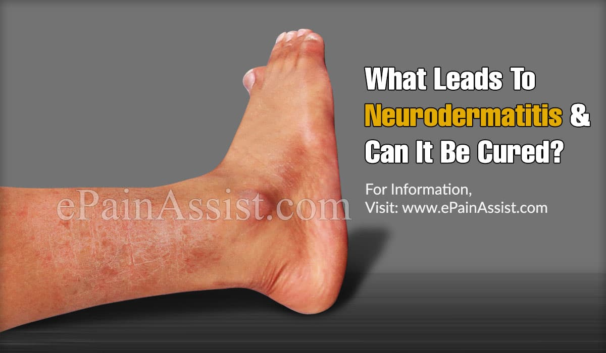 What Leads To Neurodermatitis & Can It Be Cured?