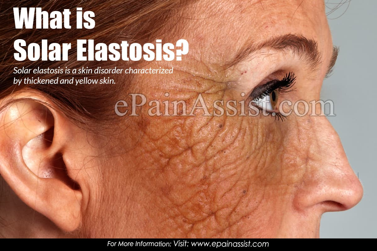 What is Solar Elastosis?