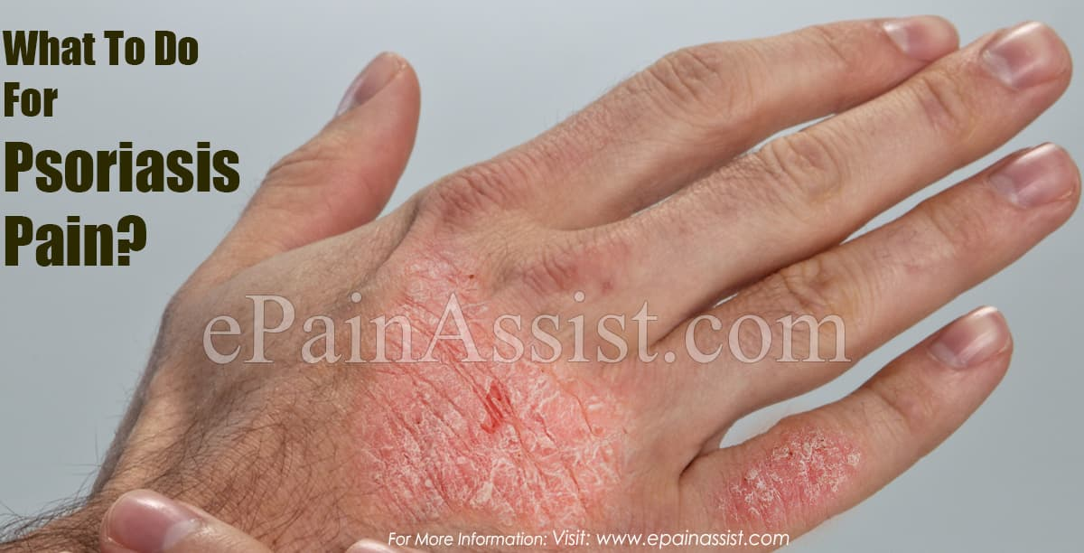 What To Do For Psoriasis Pain?
