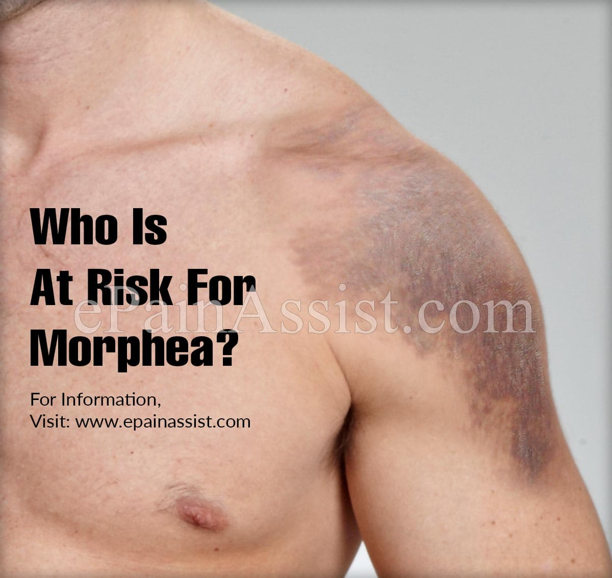 Who Is At Risk For Morphea?