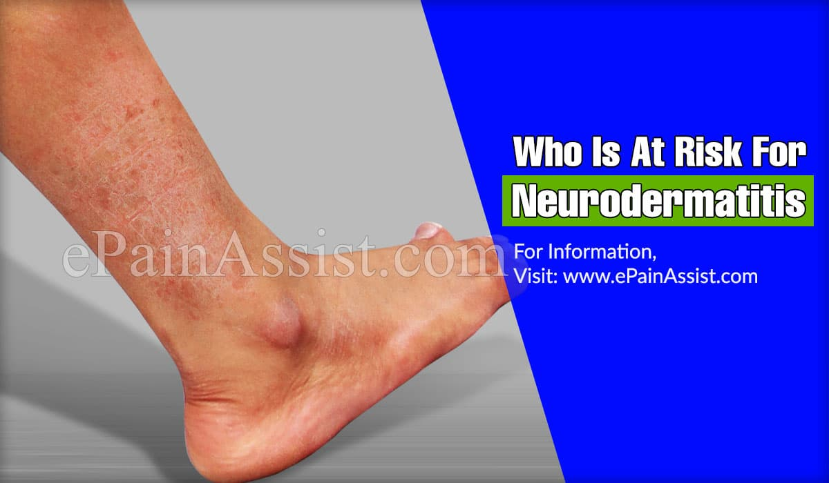 Who Is At Risk For Neurodermatitis?