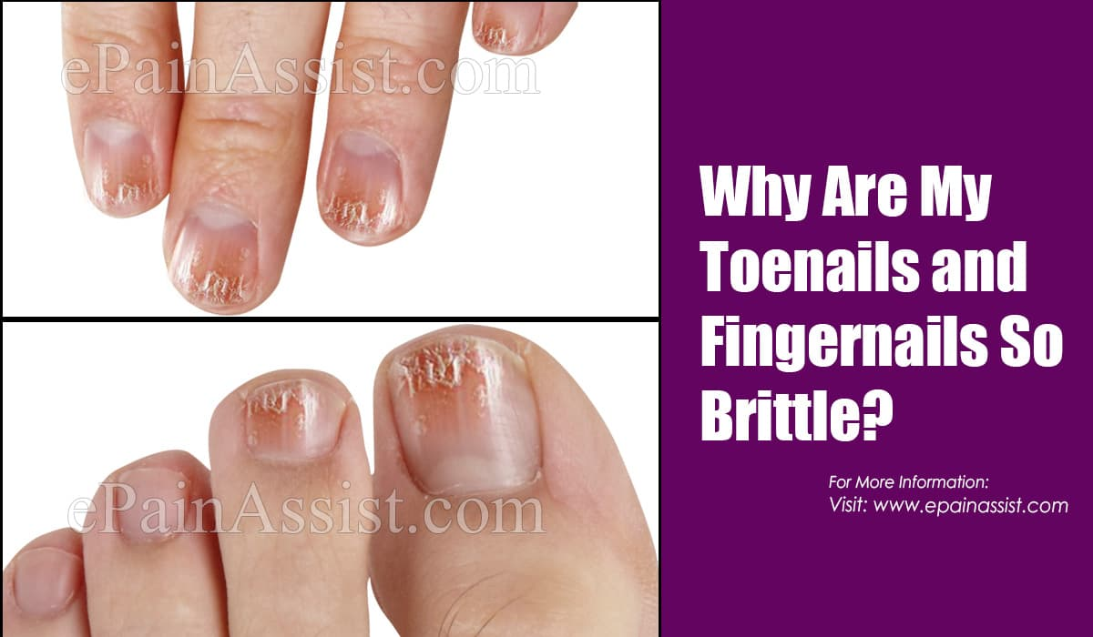 Why Are My Toenails and Fingernails So Brittle?