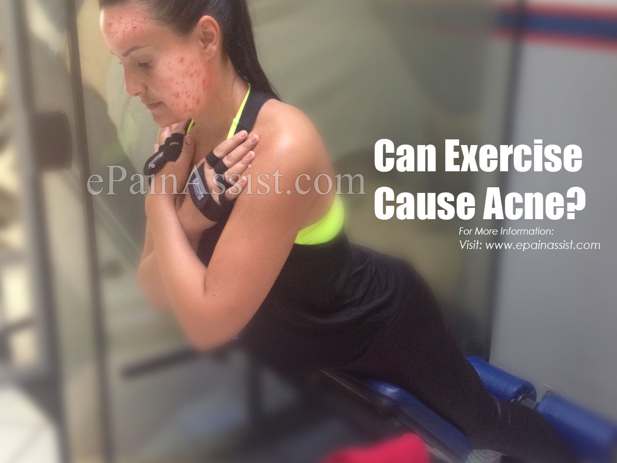 Can Exercise Cause Acne?