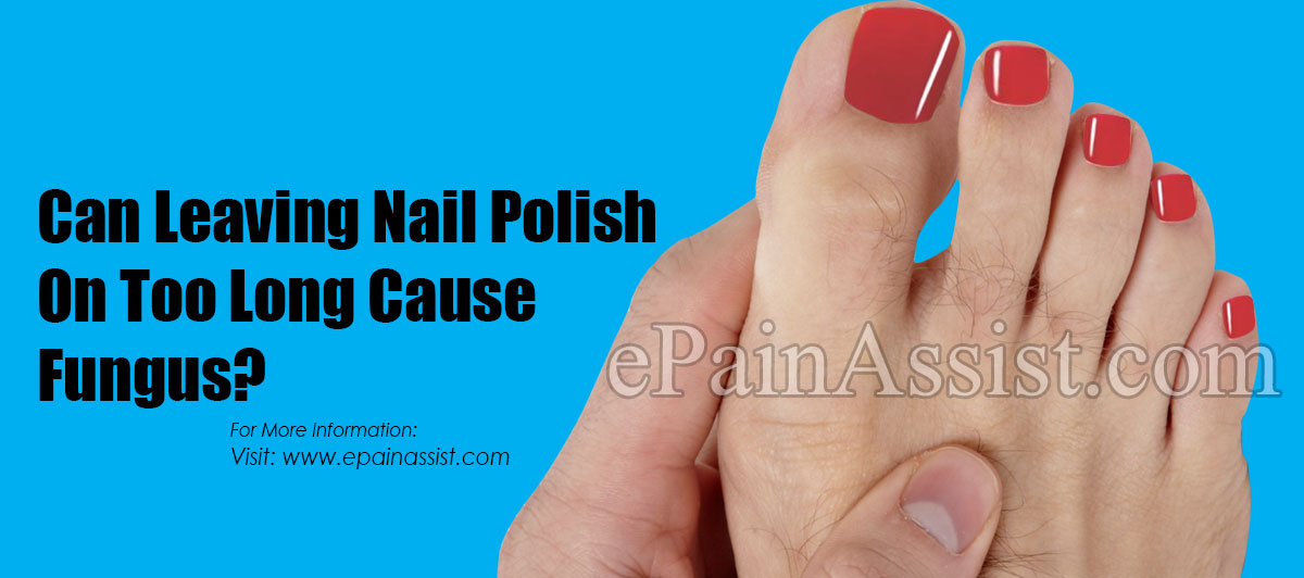 Can Leaving Nail Polish On Too Long Cause Fungus?