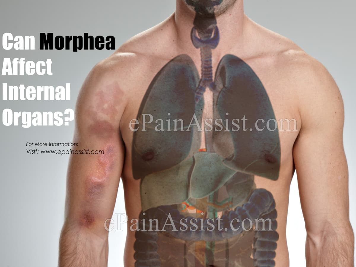 Can Morphea Affect Internal Organs?