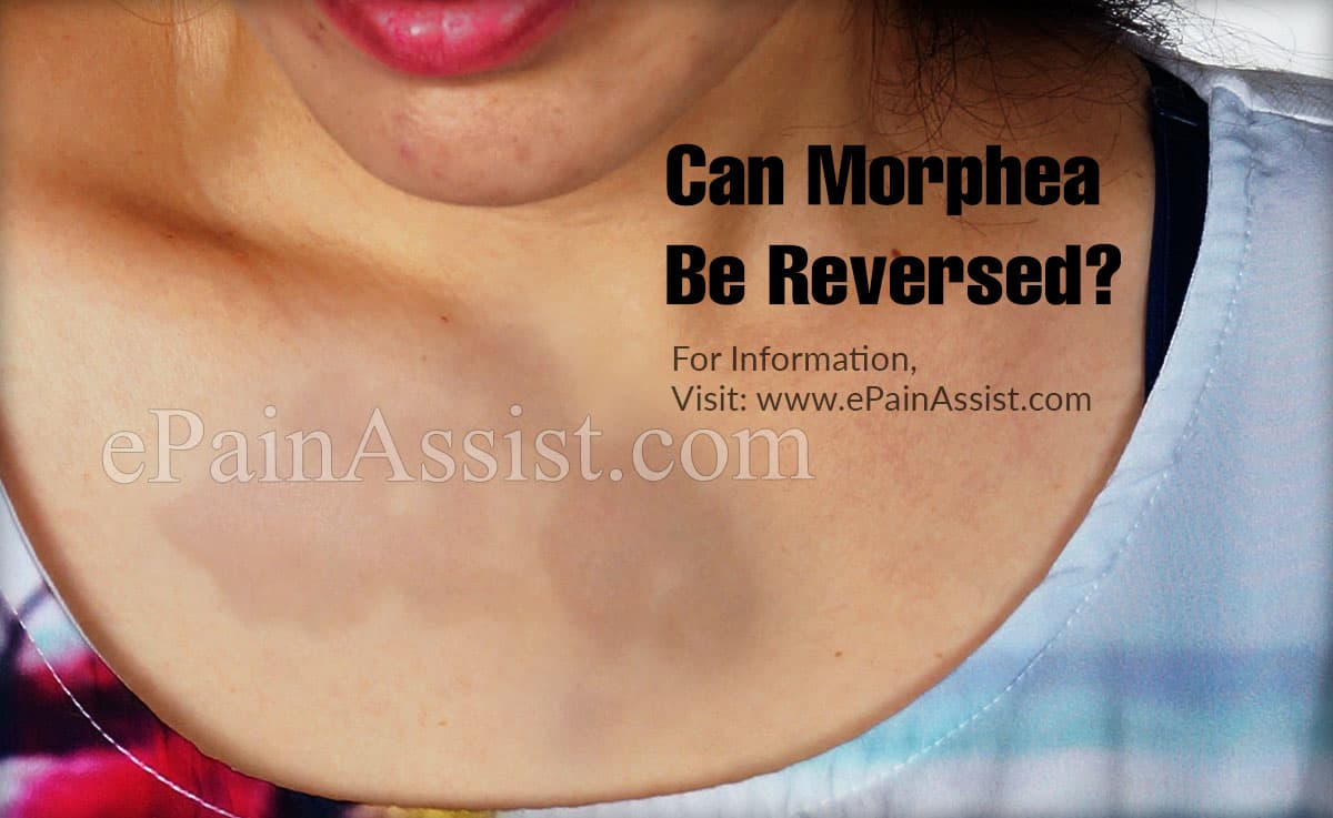 Can Morphea Be Reversed?