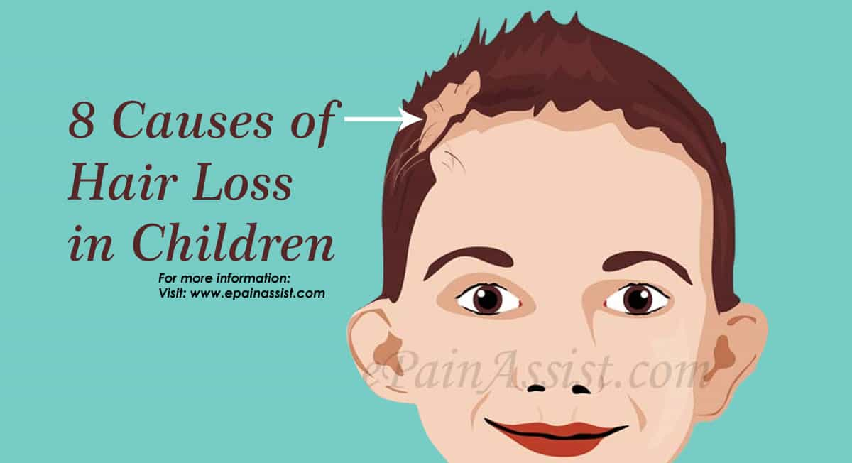 8 Causes of Hair Loss in Children