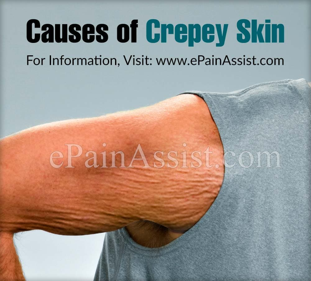 Causes of Crepey Skin