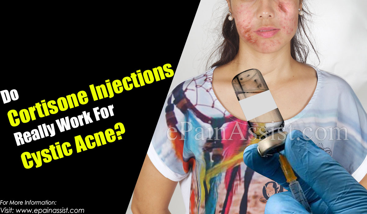 Do Cortisone Injections Really Work For Cystic Acne?